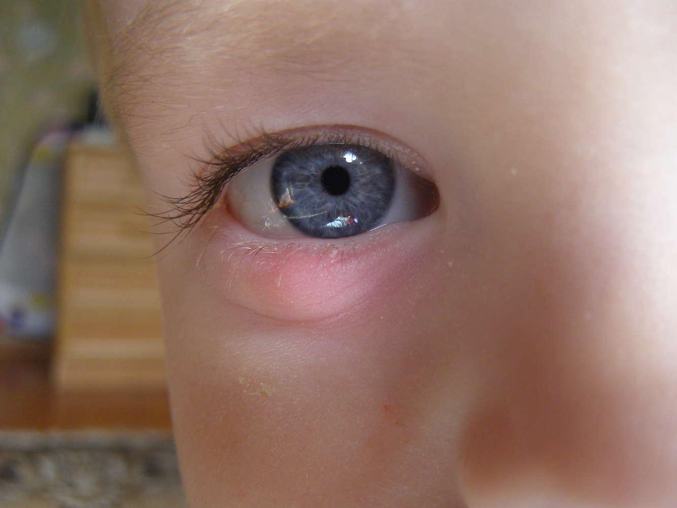 Ячмень на глазу у ребенка: как лечить в домашних условиях 878