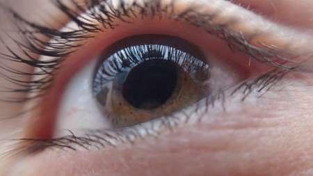 Ячмень на глазу не проходит несколько месяцев или дней, что делать?