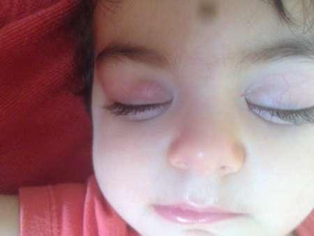 Спящий ребёнок с шишкой на верхнем веке