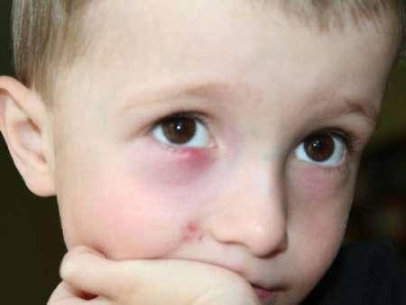 Мальчик с опухшим нижним веком на правом глазу