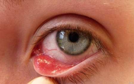 Глаз с припухлостью