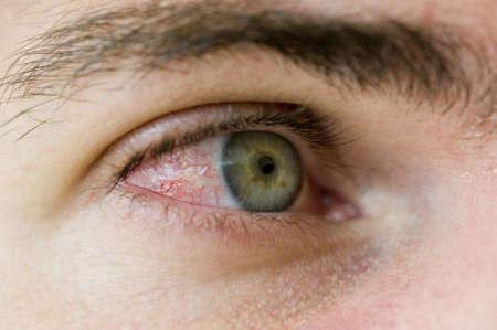 Покрасневший и воспалённый глаз мужчины
