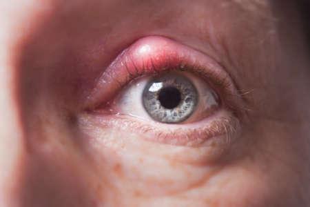 Глаз человека с огромной красной шишкой на верхнем веке