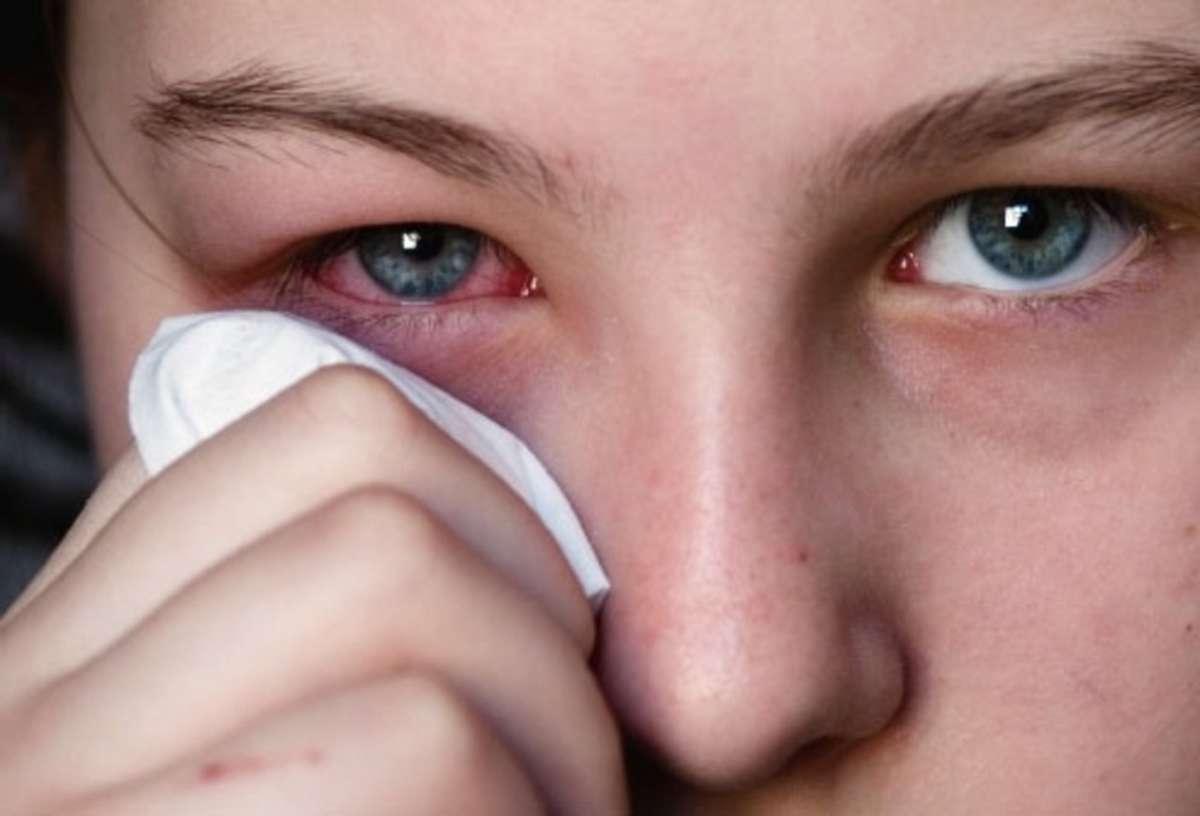 Накопительная аллергия на ресницы