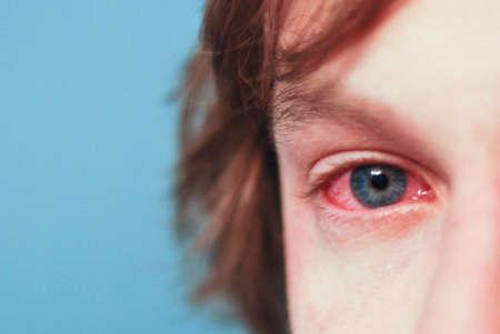 покрасневший глаз у ребёнка