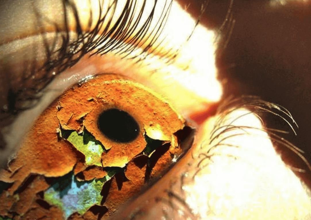 Проявления синдрома сухости глаз при диабете: симптомы