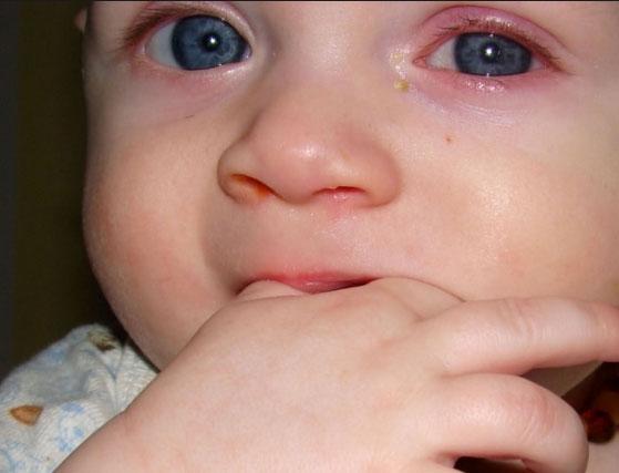 Аденовирусный конъюнктивит у детей: лечение, симптомы и причины