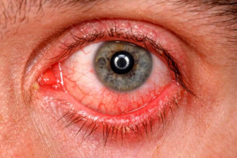 признаки хламидии глаза