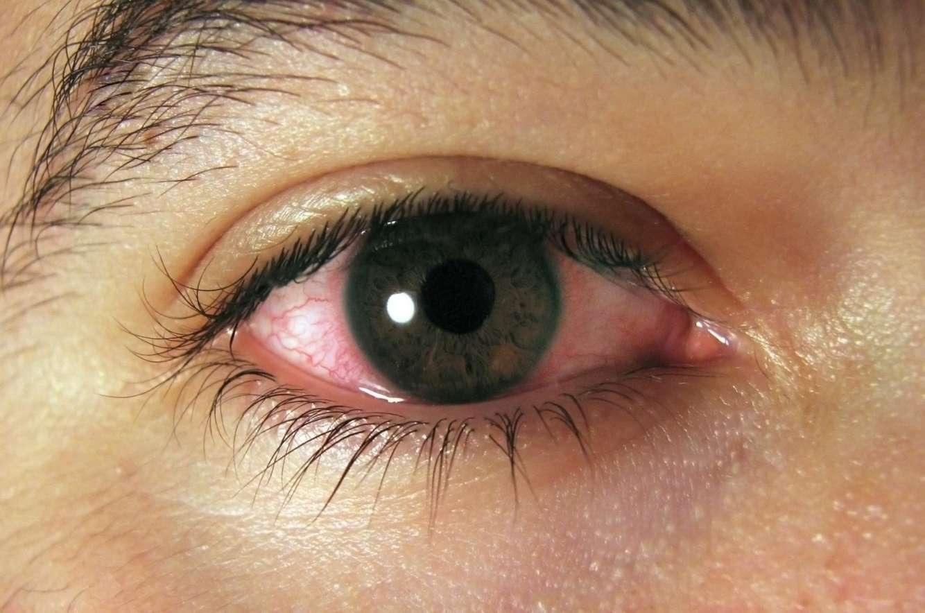 Конъюнктивит глаз у беременных 86