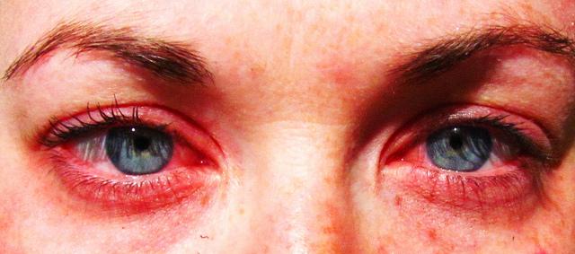 страховые как убрать заплаканные глаза быстро спортсменка телеведущая что