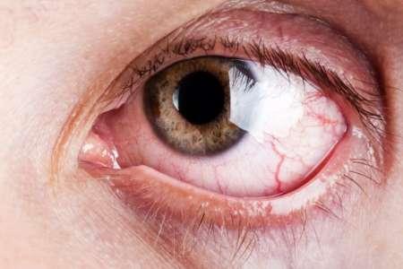 воспаленный глаз у мужчины