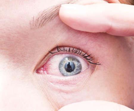 покрасневший глаз