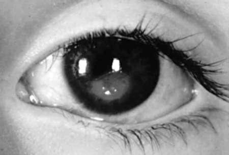 черно-белый глаз