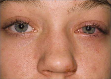 покрасневший глаз у мальчика