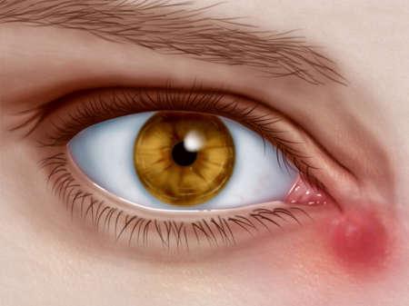 воспаление слезного канала