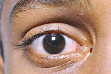 глаз после дакриоцисториностомии