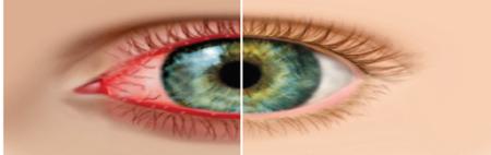 Здоровый глаз/больной глаз