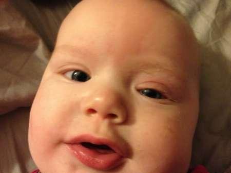 Малыш с припухшим глазиком