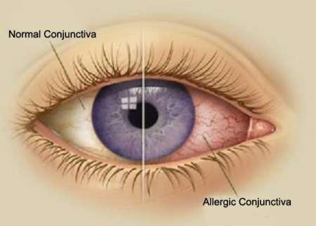 как выглядит здоровый и больной глаз