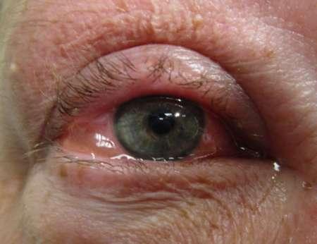 опухший и красный глаз