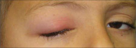 опухший глаз у ребенка