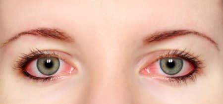 покрасневшие глаза