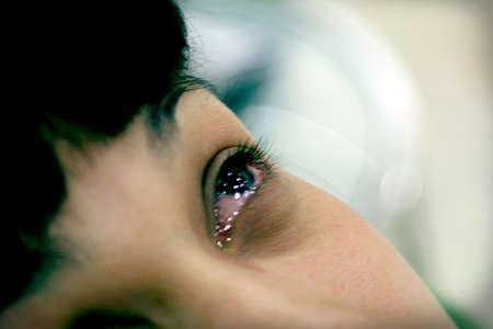 Слезотечение и покраснение глаз у женщины