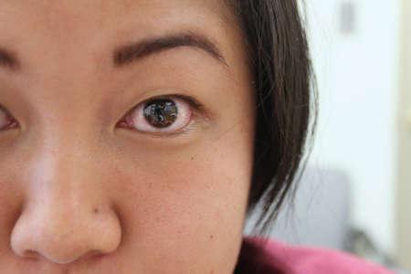 красные глаза у молодой мамы
