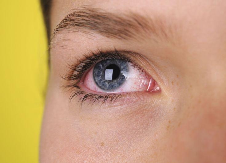 В домашних условиях лечить покраснение глаза 528