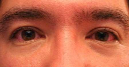 мужчина с воспаленными глазами