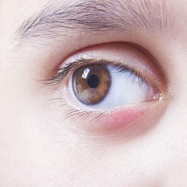 блефарит аллергический симптомы и лечение фото