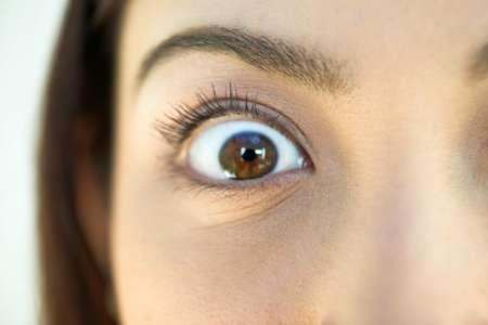 выпученный глаз
