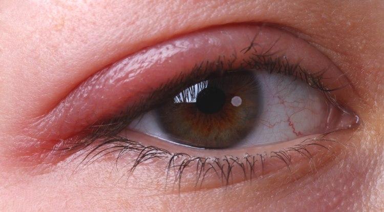 Антибиотик при гнойном конъюнктивите — Болезни глаз