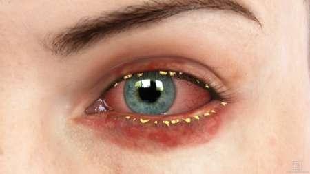 красный глаз с гноем