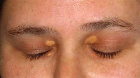 желтые образования в уголках глаз
