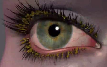 воспаленный глаз с гноем