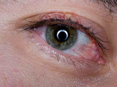 воспаленный глаз и пораженная линия ресниц