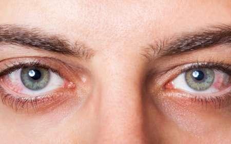 покрасневшие глаза мужчины
