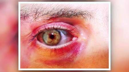 воспаленный глаз и веки
