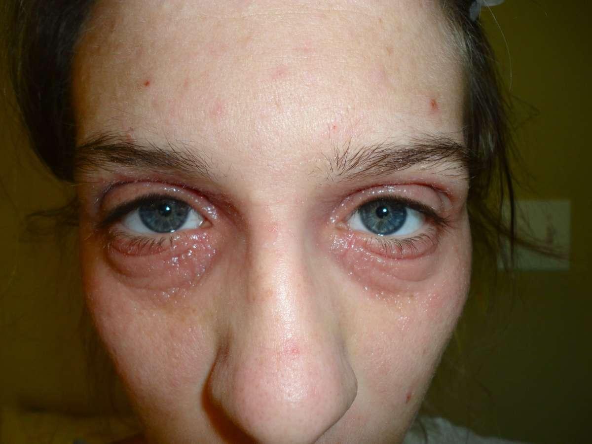 Аллергический дерматит под глазами