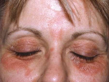 женщина с дерматитом век