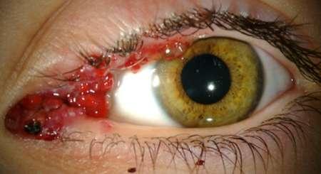 красный уголок глаза