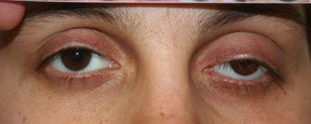 нависание век обоих глаз