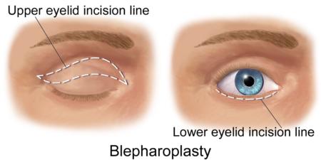 блефаропластика