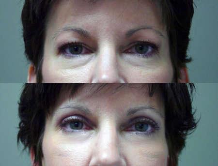 гража над глазами до и после коррекции