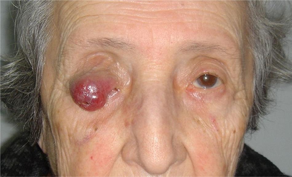Картинки как выглядит рак глаза