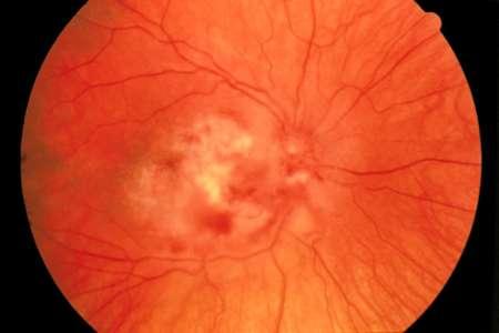 сетчатка при цитомегаловирусном ретините