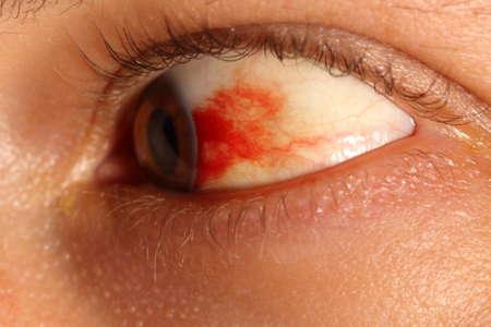 кровоизлияние в сетчатке