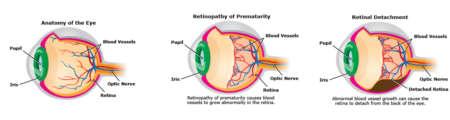 сравнение здорового глаза и с ретинопатией