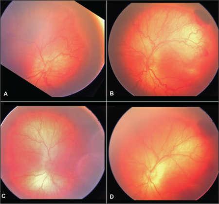 сетчатка при ретинопатии недоношенных